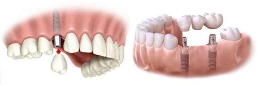 implant zębowy